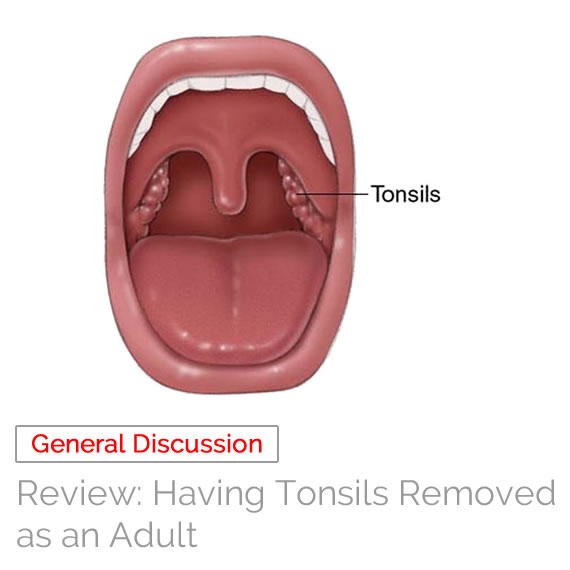 Having Tonsils Removed As An Adult